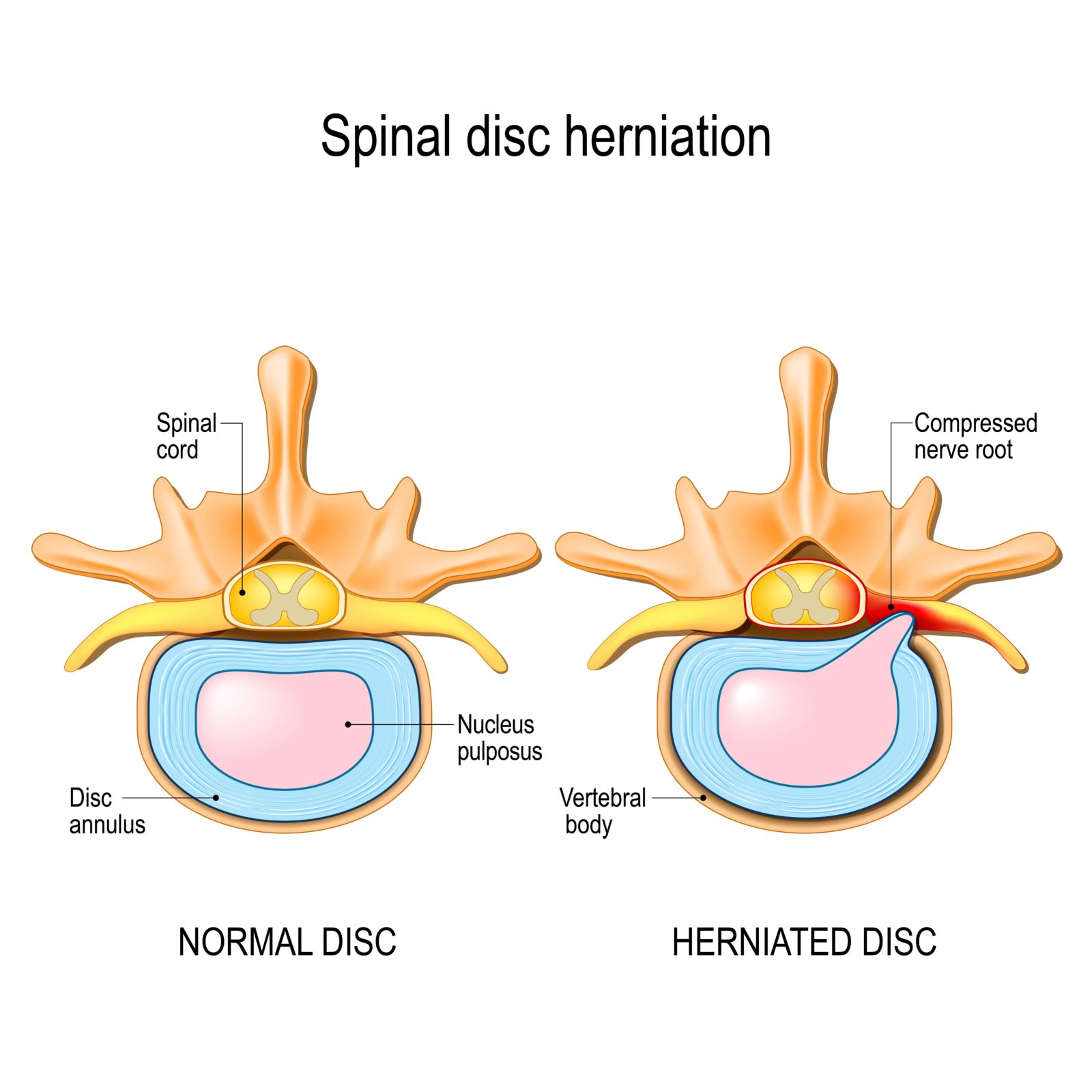 diagram of a normal disc and herniated disc