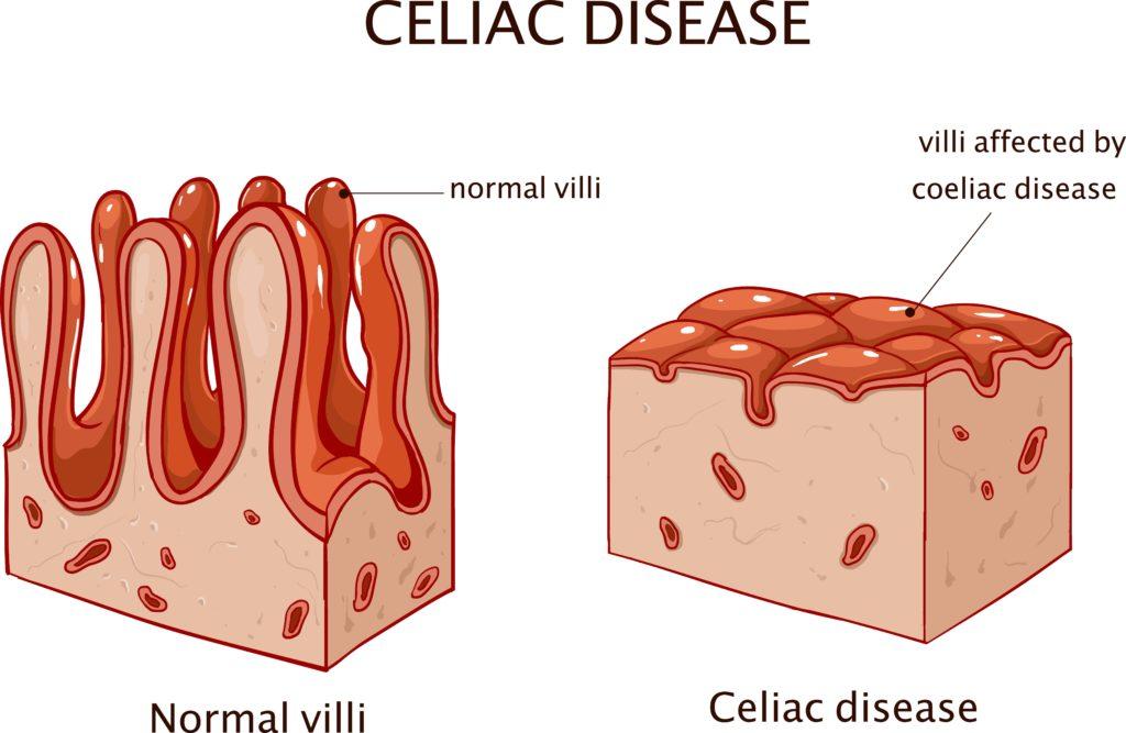 normal villi vs. celiac disease