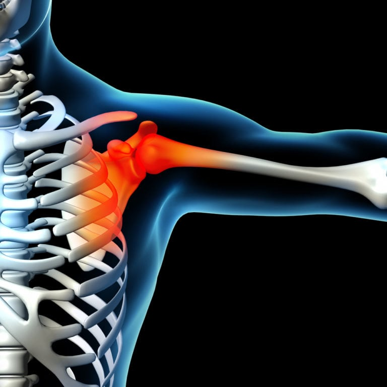 Musculoskeletal-Sports-Injury