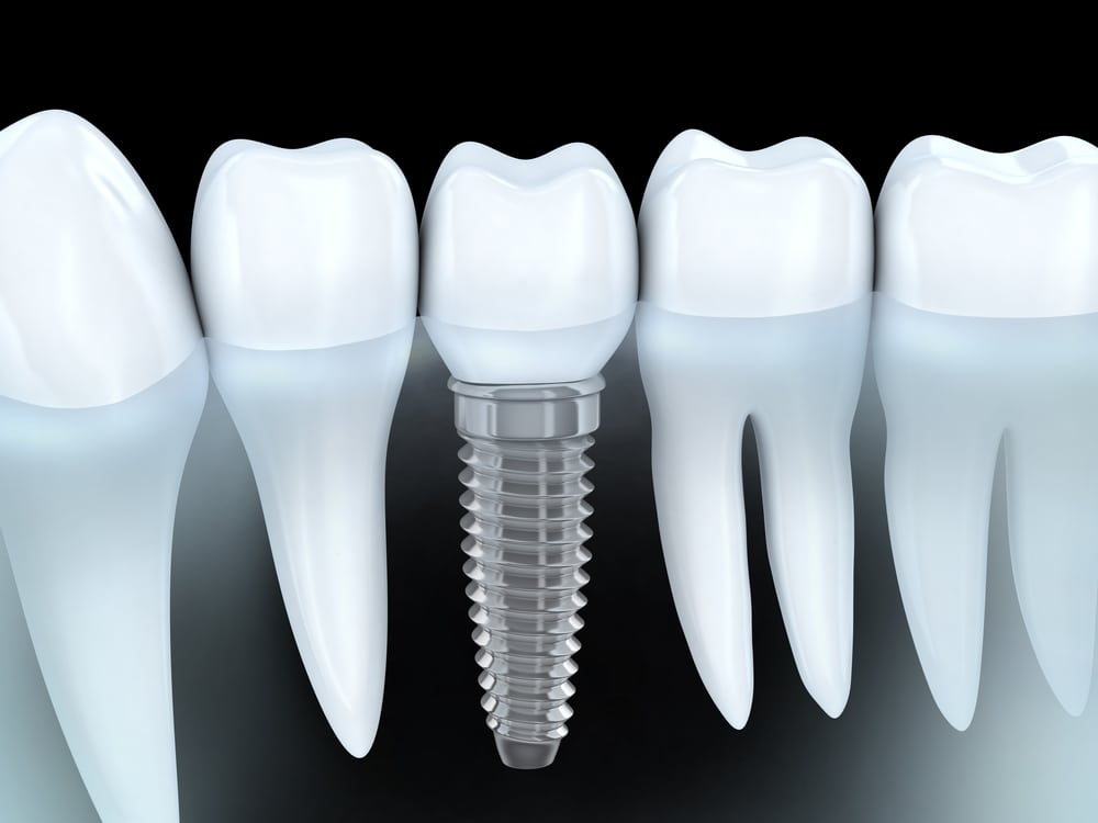 3d image of a tooth implant