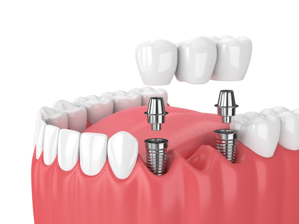 graphic of dental implant being inserted into teeth