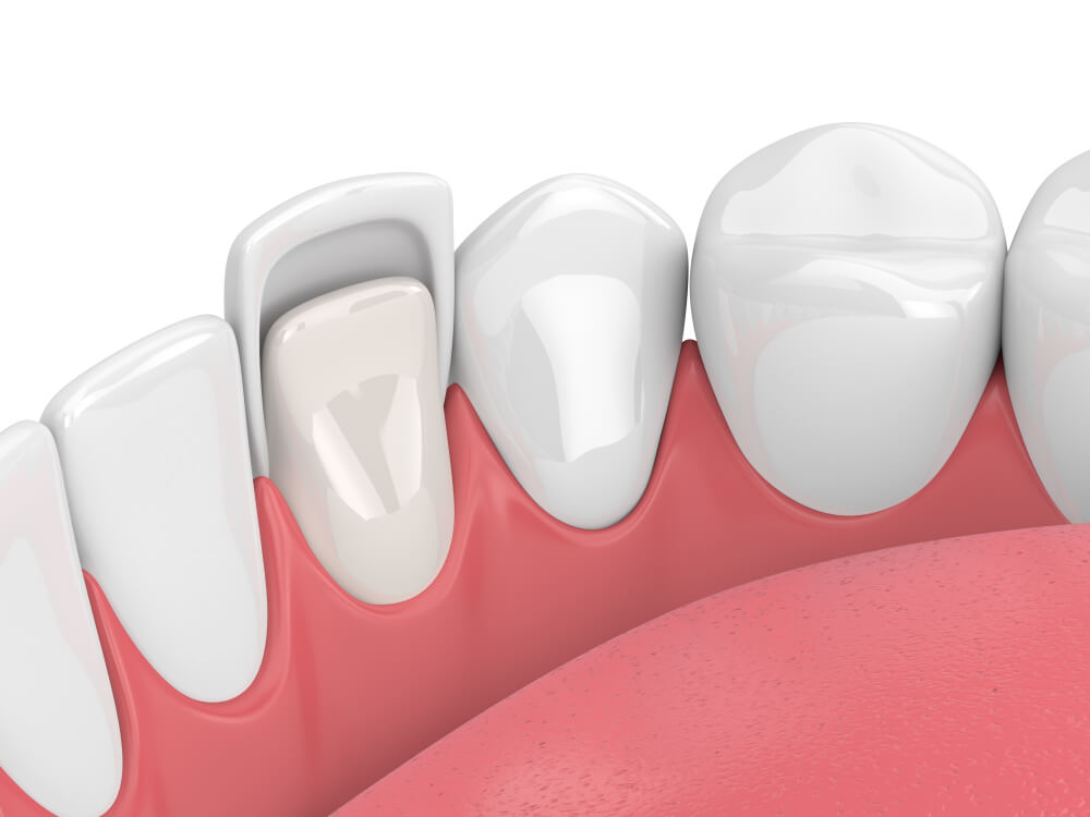 graphic of veneers being placed on teeth