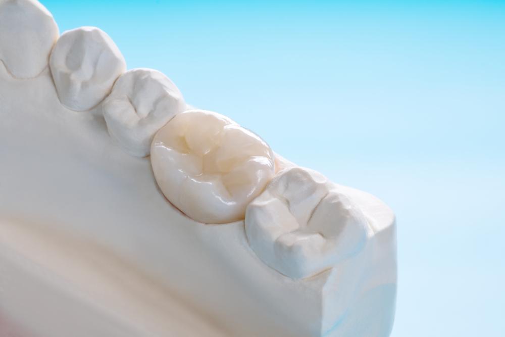 Prosthodontic of dental crown on mold
